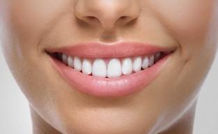 Sorriso bonito, aparelho dental